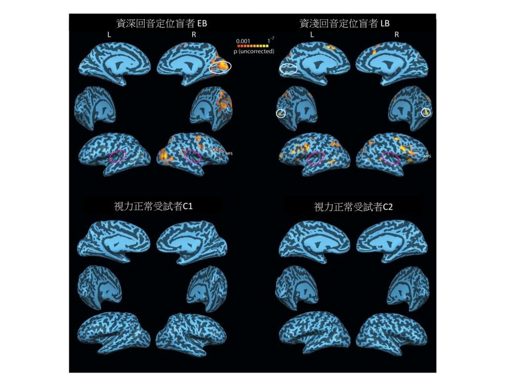 圖三:透過腦部功能性磁共振造影(fMRI),研究員發現能夠使用回聲定位的盲人(上方)能夠在吵雜的環境中辨識出隱藏其中的回聲定位信號。此外,在接收到回聲定位信號時,盲人腦部有明顯活動的是處理視覺訊號的區塊(白色圈圈處),而非聽覺訊號的區塊(紅色圈圈處)。 一般視力正常的受試者(下方)在同樣的測驗中則是無法分辨出任何回聲定位訊號。 (圖片來源:Thaler, et al. 2011. Neural correlates of natural human echolocation in early and late blind echolocation experts. PLoS One, 6:e20162.)